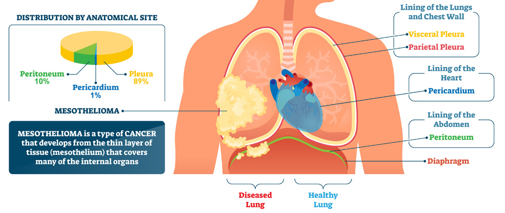 Diagram of the different types of mesothelioma.