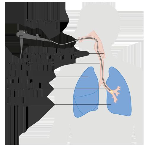 Diagram of a bronchoscopy.