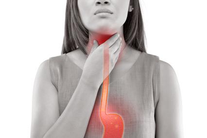 Proton pump inhibitors and heartburn.