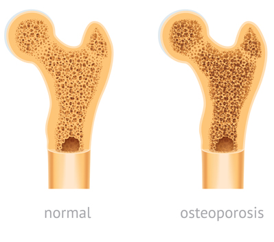 Comparison of a normal bone versus a bone with osteoporosis.